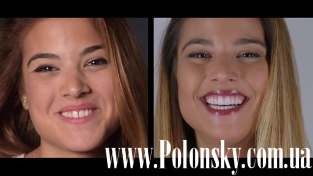 Все о стоматологии Никита Полонский / 17 марта 2017