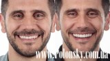 Все о стоматологии Никита Полонский / 28 апреля 2017