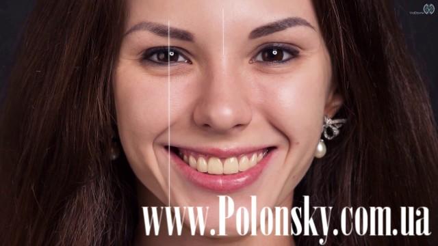 Все о стоматологии Никита Полонский / 14 апреля 2017