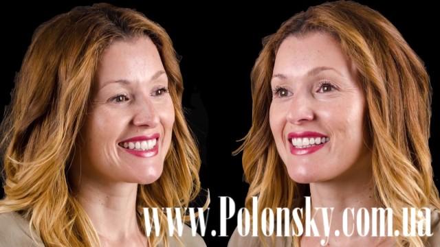 Все о стоматологии Никита Полонский / 23 июня 2017