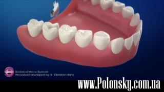 Все о стоматологии Никита Полонский / 22 июля 2017